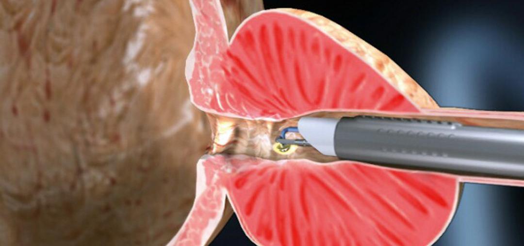 plasmagyrusacmi